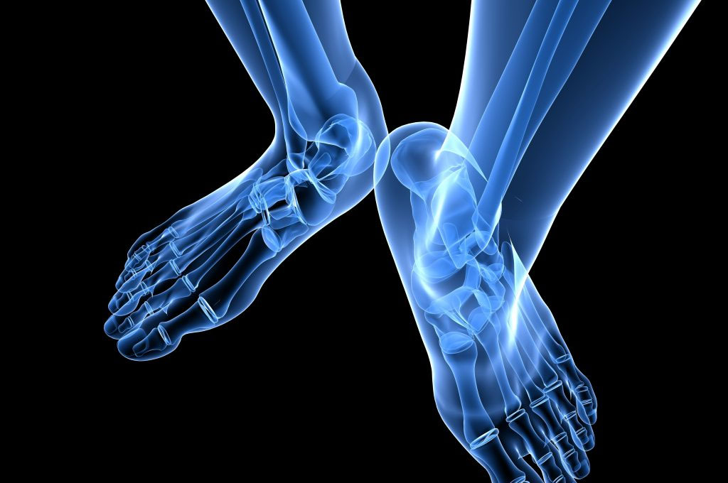 Big toe joint pain? Bunions (hallux valgus)