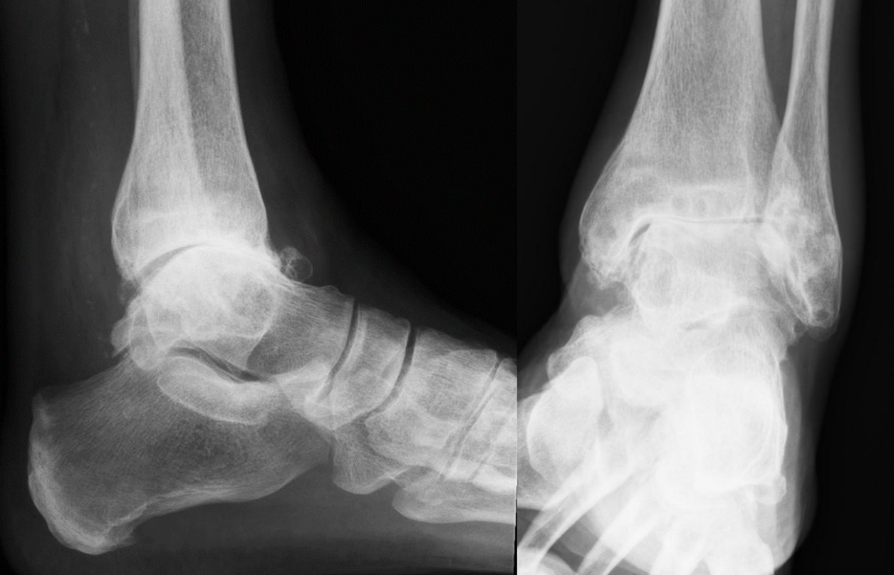Ankle replacement or ankle fusion: Which surgery is best for ankle arthritis?